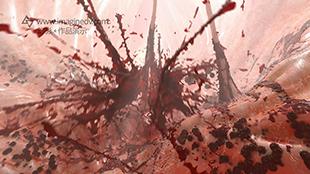 SDRA协会/医疗广告片